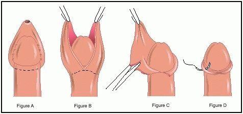Как выглядит хуй после обрезания